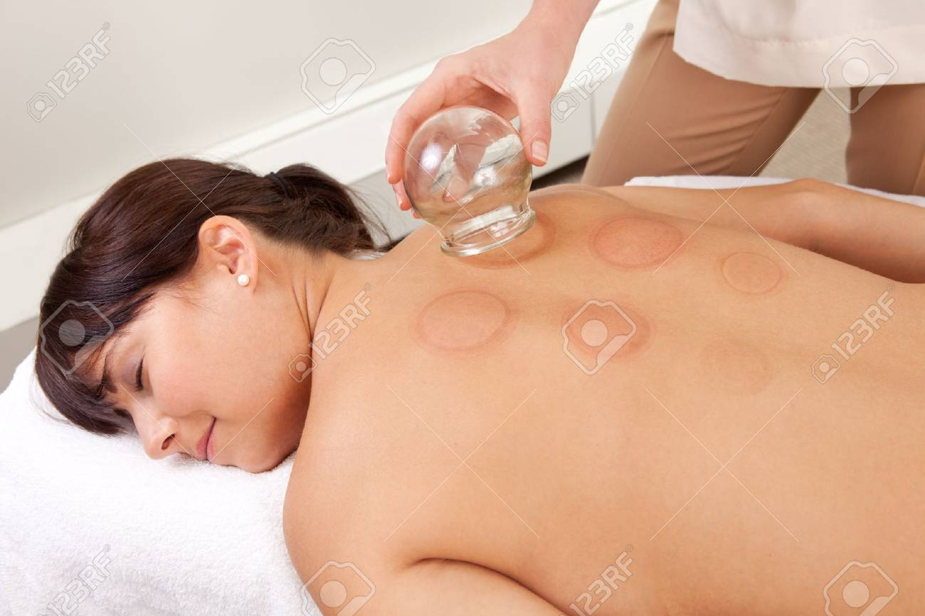 Back detail of a young woman who just underwent an acupuncture fire cupping treatment Stock Photo - 11173402