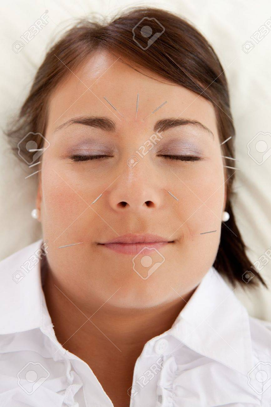 Acupuncture patient undergoing a facial beauty treatment Stock Photo - 11538684