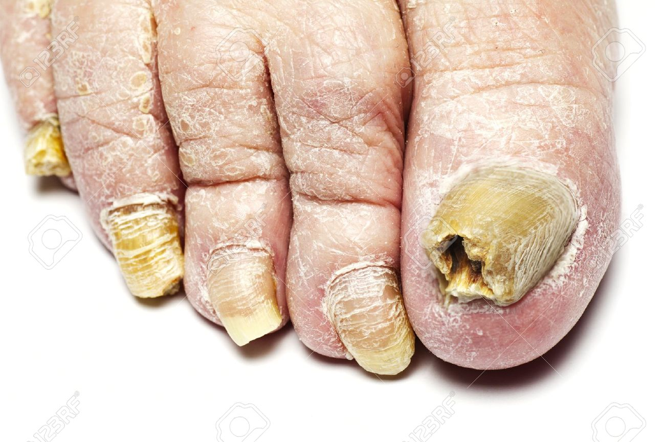 Fungus Infection On Nails Of Man Stock Photo, Picture And Royalty ...