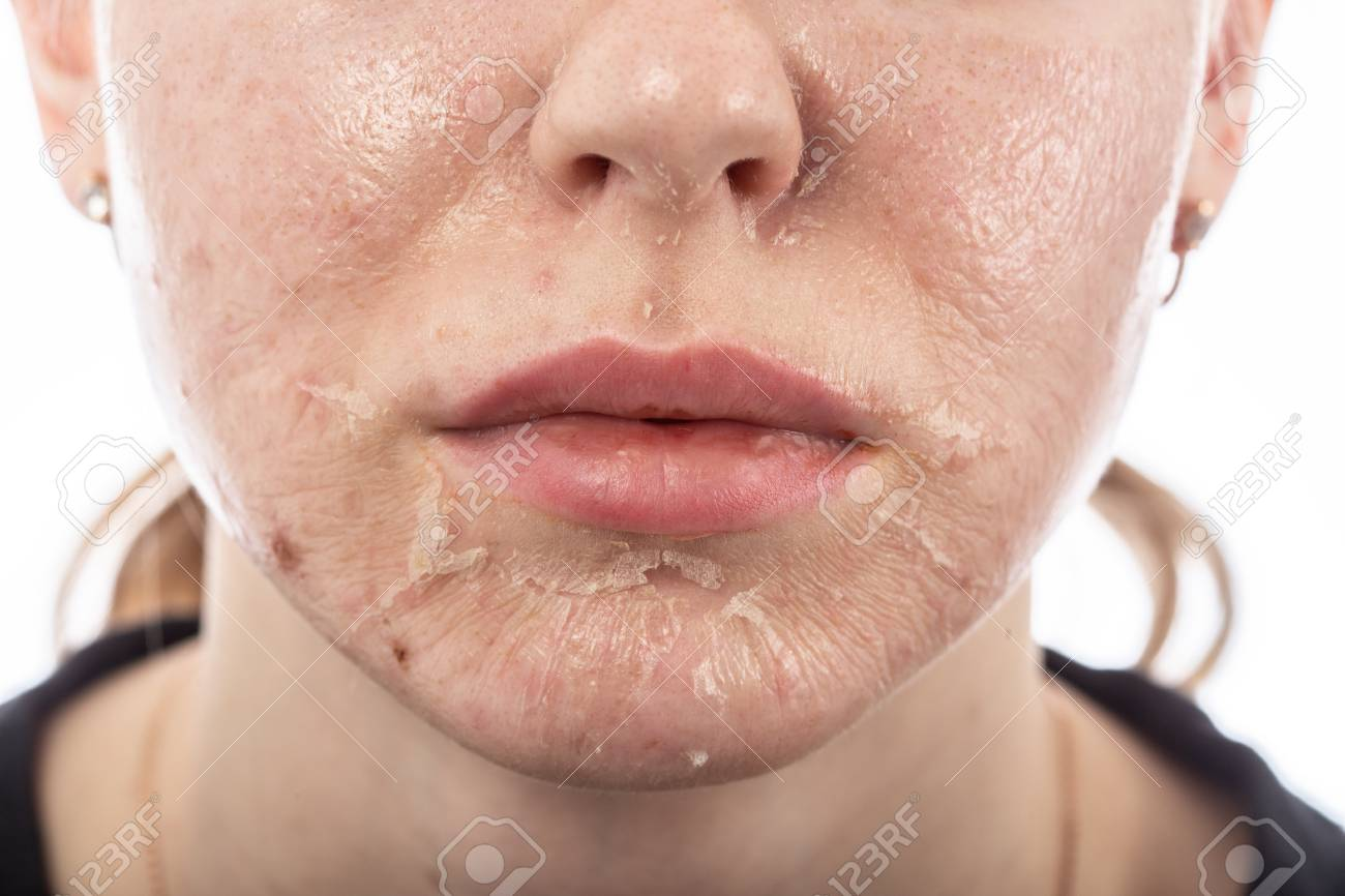 female face with burned skin after chemical peeling - 116540991