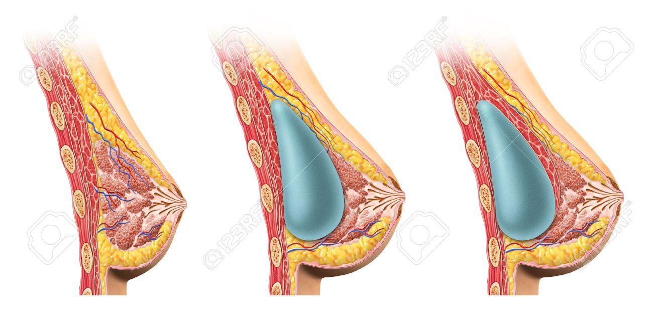 Frau Brust-Implantat-Querschnitt-Vergleich Diagramm, Unter Und über ...