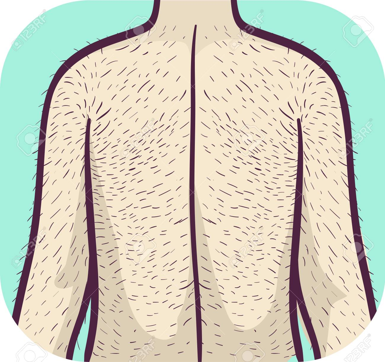 Illustration - Illustration of a Man with Excessive Hairy Back and Arms.  Hypertrichosis Health Problem