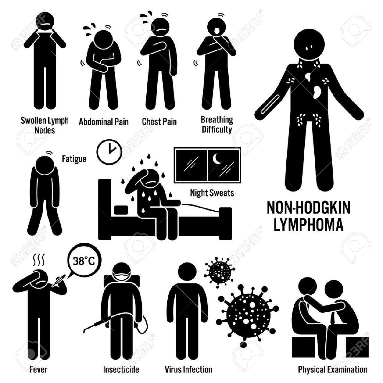 Limfomul Hodgkin: cauze, simptome, diagnostic, tratament