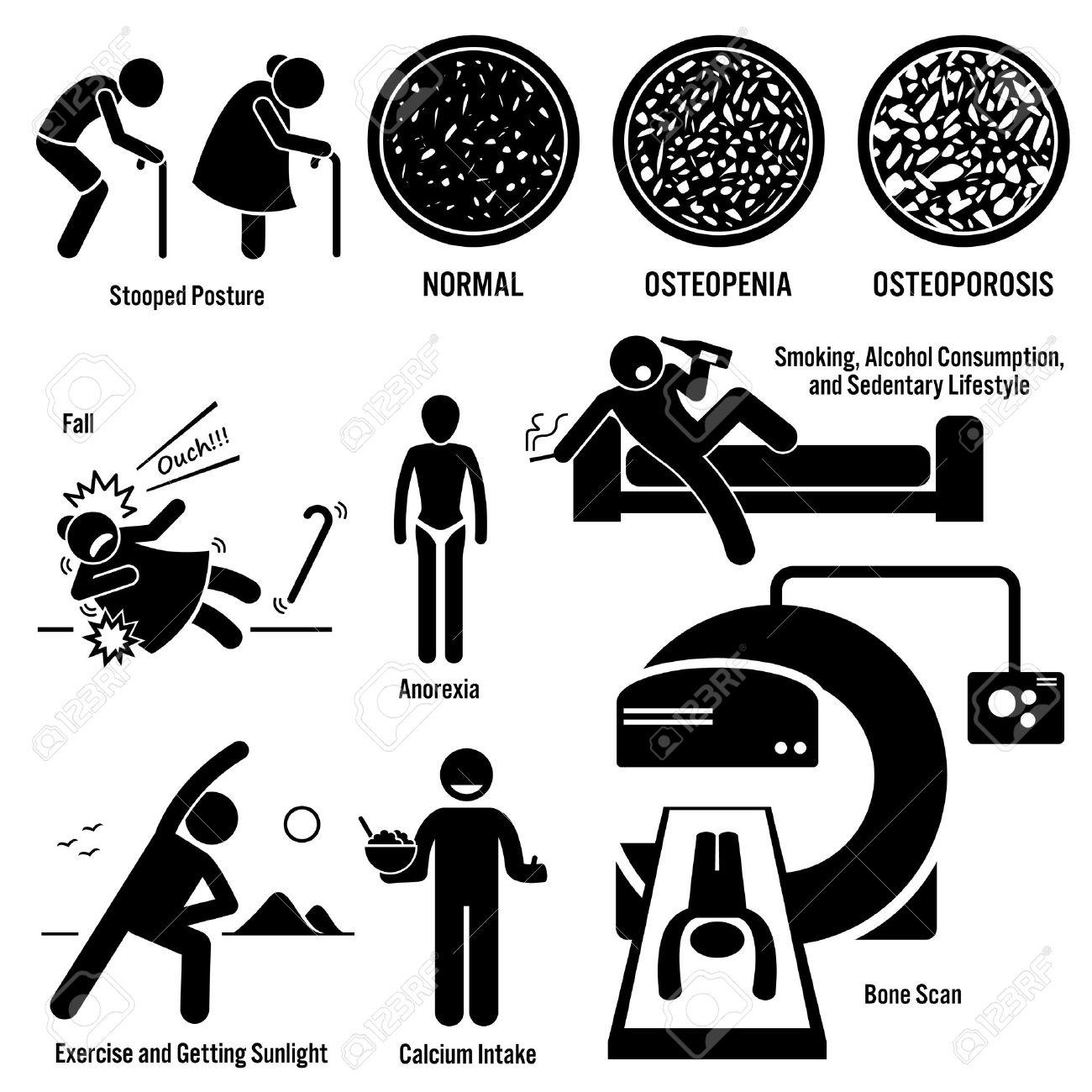Osteoporosis Old Man Woman Symptoms Risk Factors Prevention Diagnosis Stick Figure Pictogram Icons - 51365350