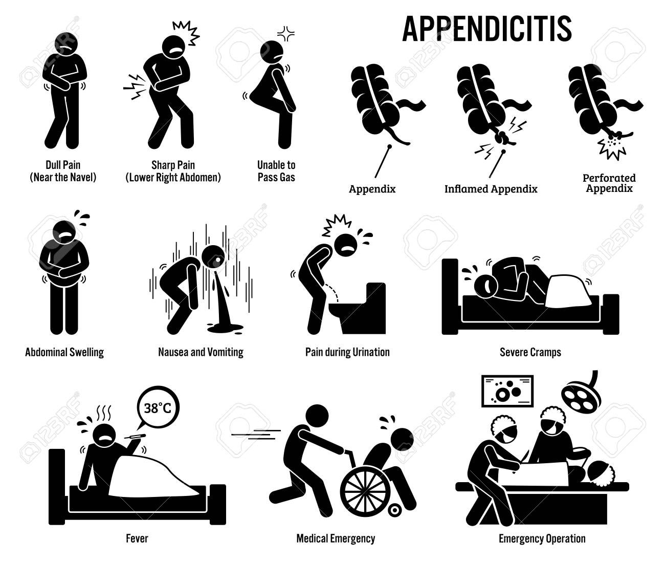 appendix and appendicitis icons  pictogram and diagrams depict signs,  symptoms, and emergency surgery