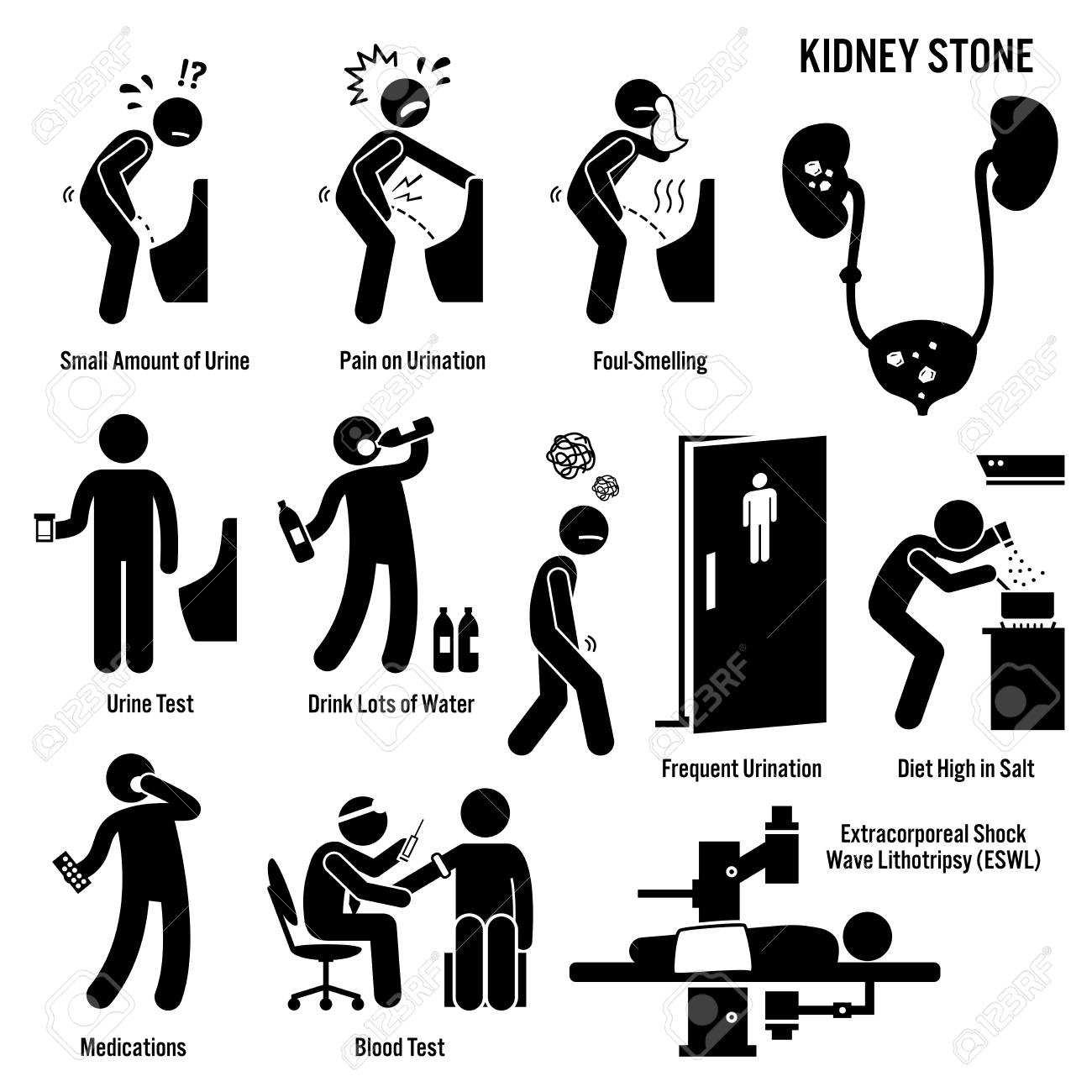 Kidney stone icons pictogram and diagrams depict signs symptoms kidney stone icons pictogram and diagrams depict signs symptoms diagnosis and treatment ccuart