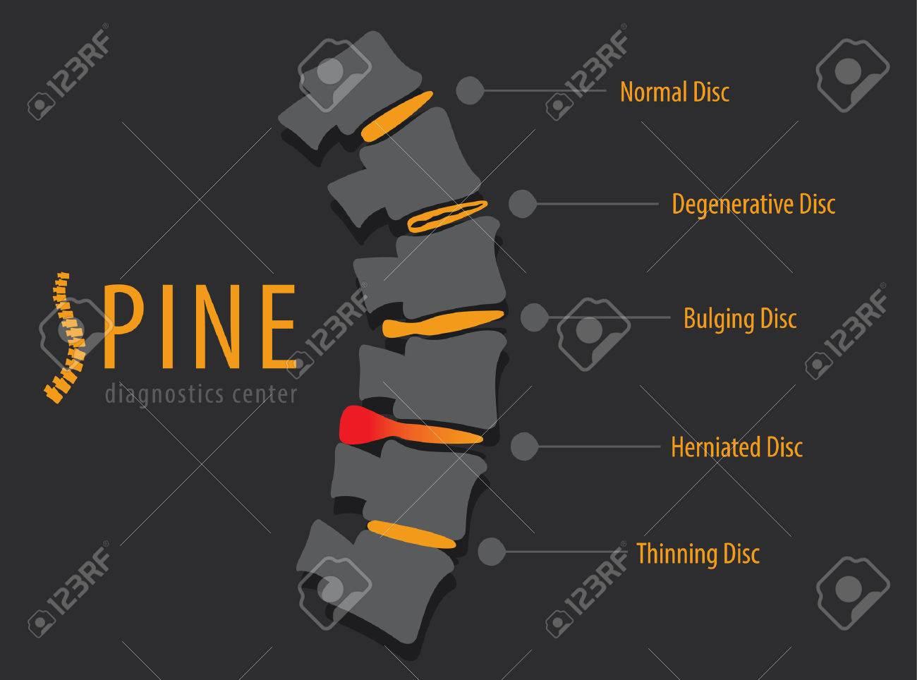 Spine anatomy disc degeneration, medical conceptual infographic vector illustration - 55942571