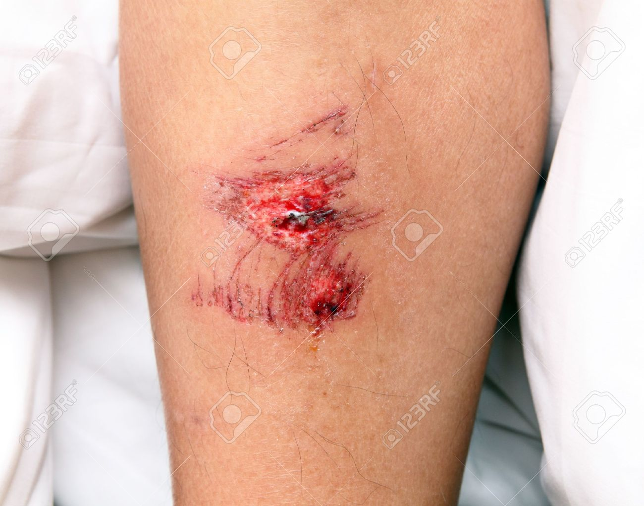 wound Stock Photo - 10637245