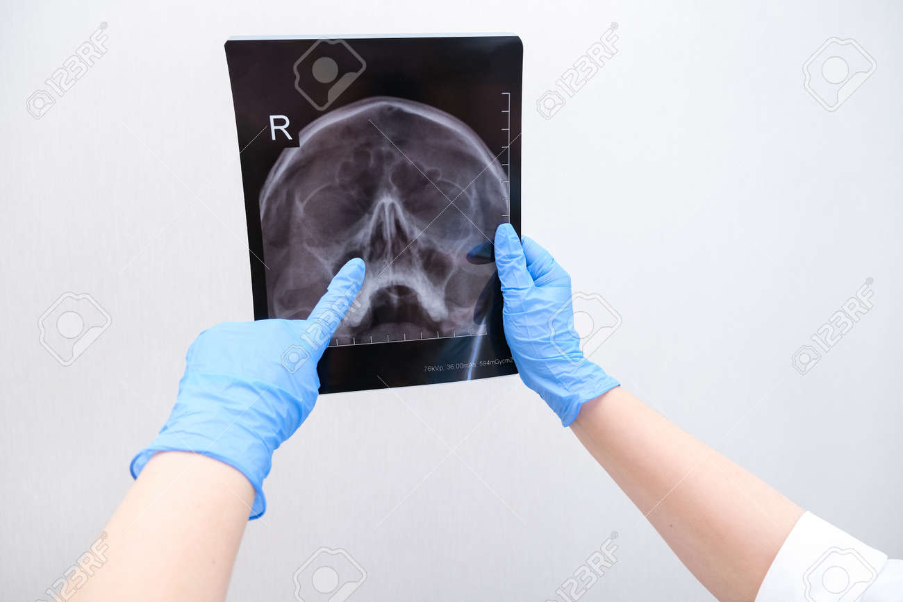 X-ray of the skull in the hand of a female doctor. With copy space. Diagnosis of sinusitis - 164138782