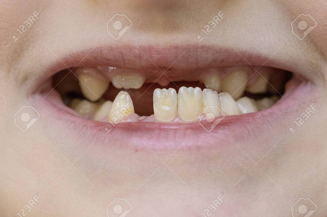 Child's mouth close-up, tooth growth and lack thereof. The concept of baby tooth loss in children - 145784113