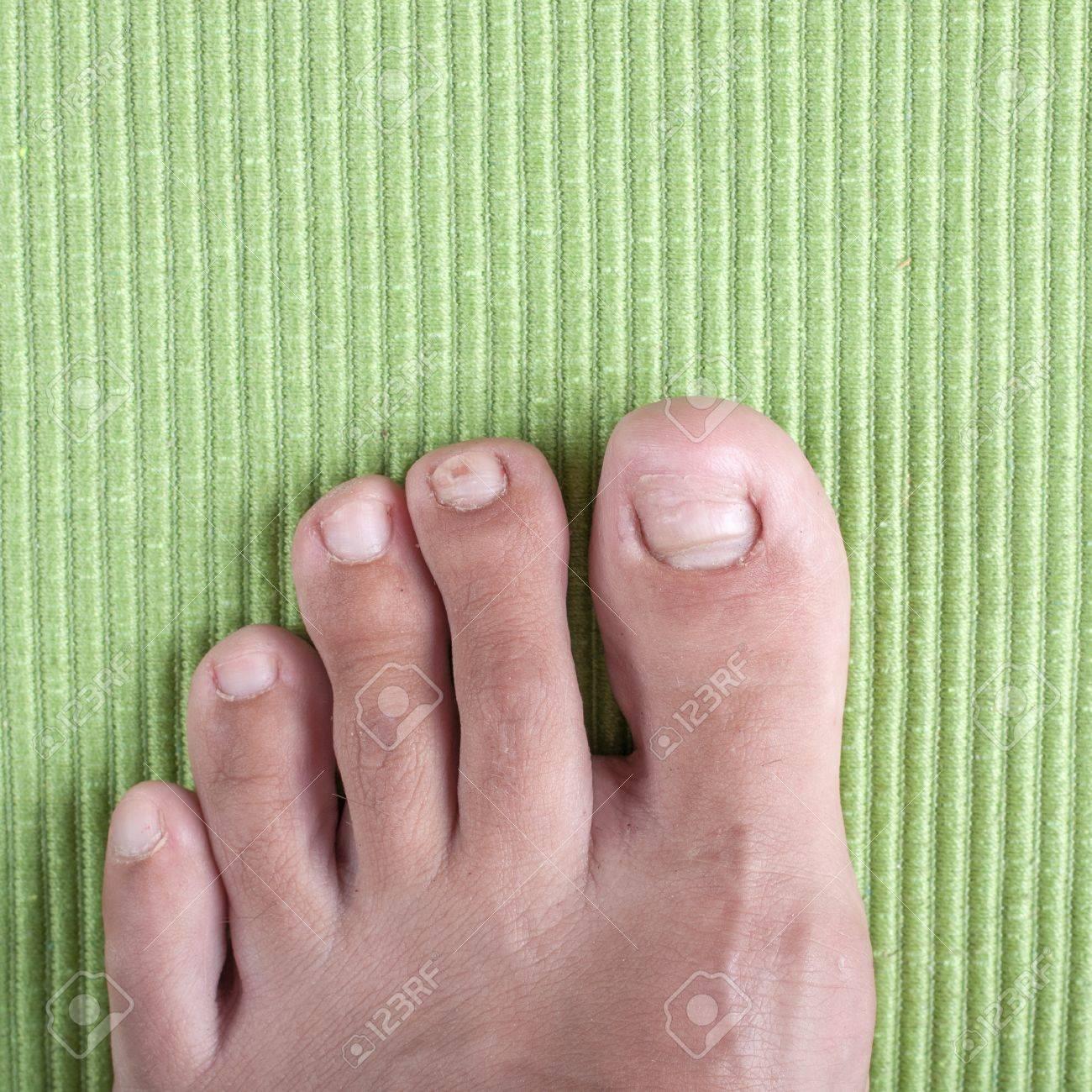 Excepcional Infección De Las Uñas Del Dedo Del Pie Ornamento - Ideas ...