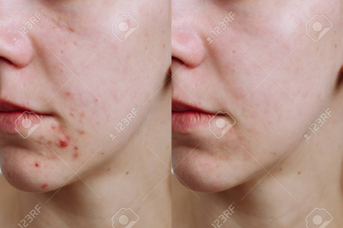 Young woman before and after acne treatment, closeup. Skin care concept - 120994430