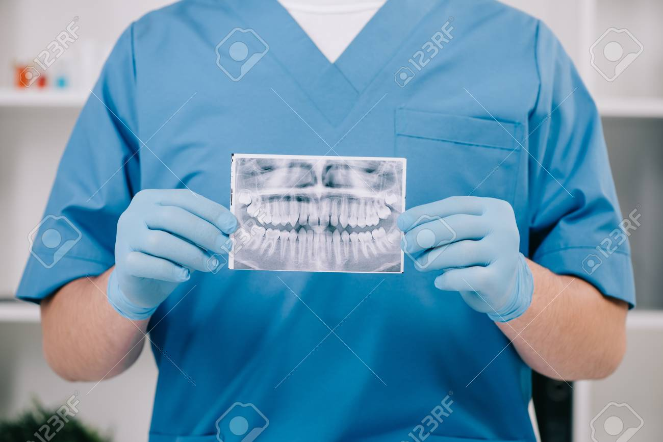 cropped view of orthodontist holding teeth x-ray in clinic - 119044366