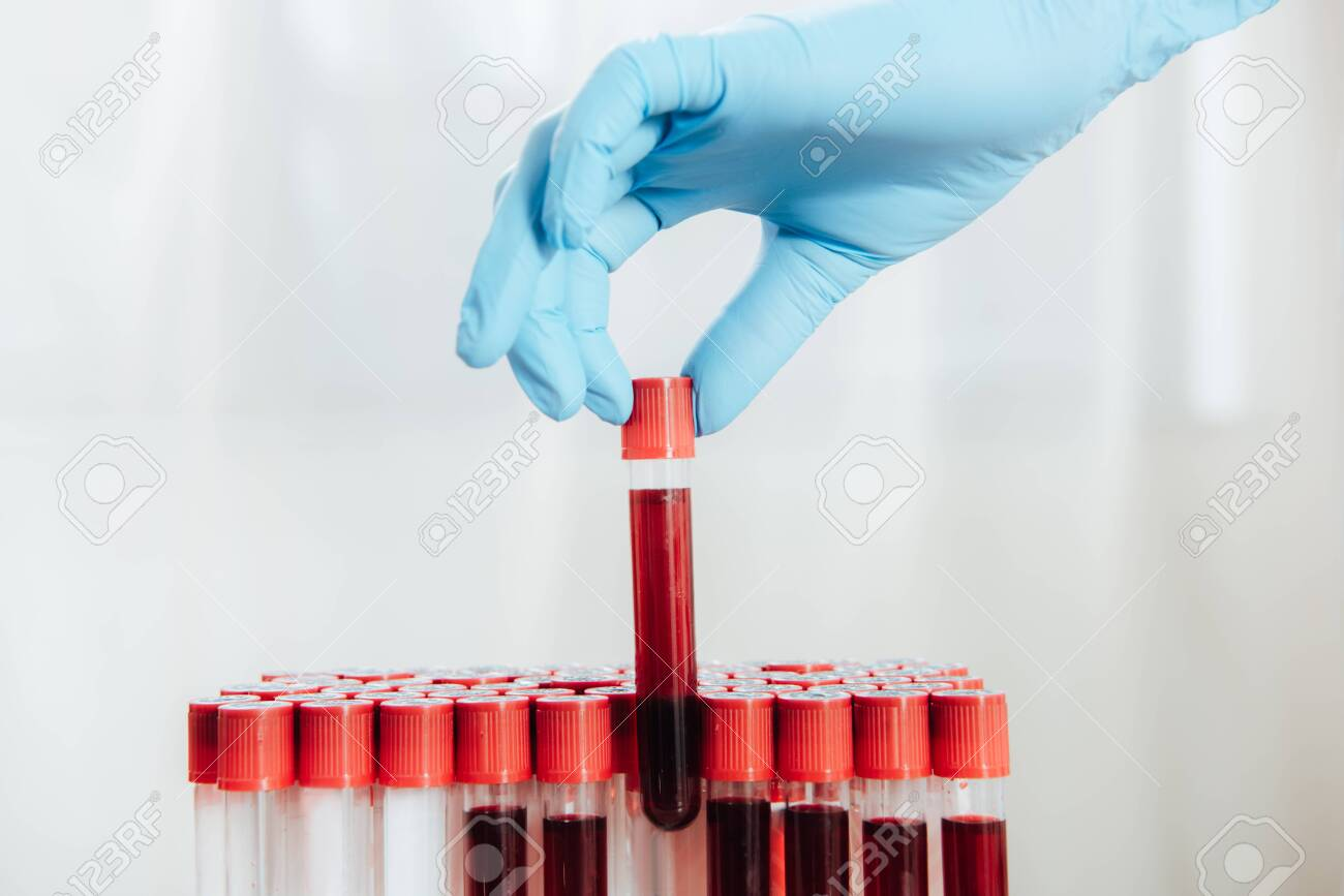 Cropped view of doctor in latex glove holding test tube with blood - 125221030