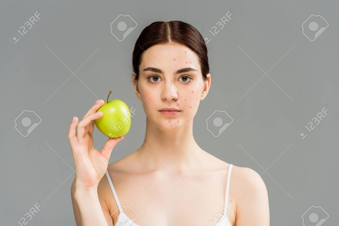 young woman with pimples on face holding green apple isolated on grey - 128186038