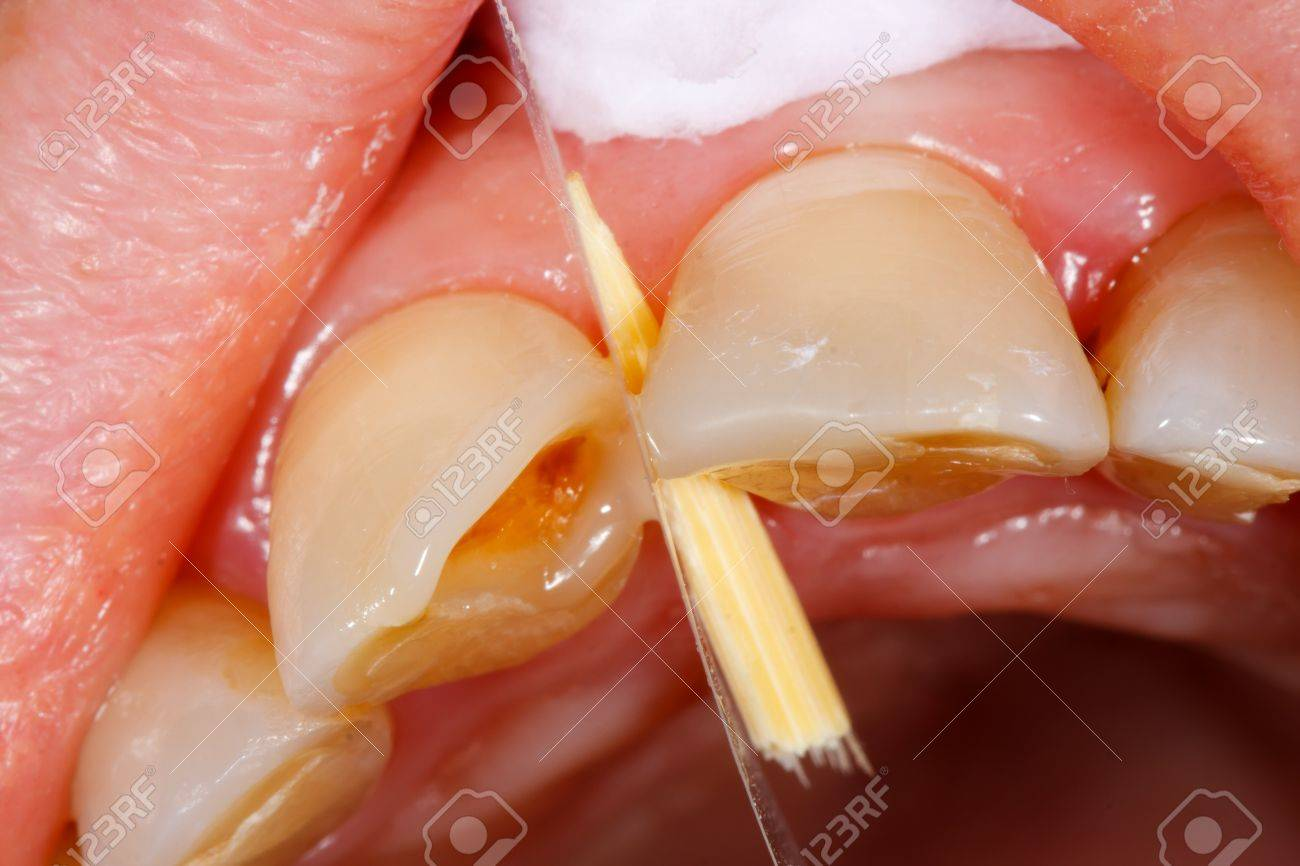 A Broken Tooth 's Treatment With Composite Filling Material ...
