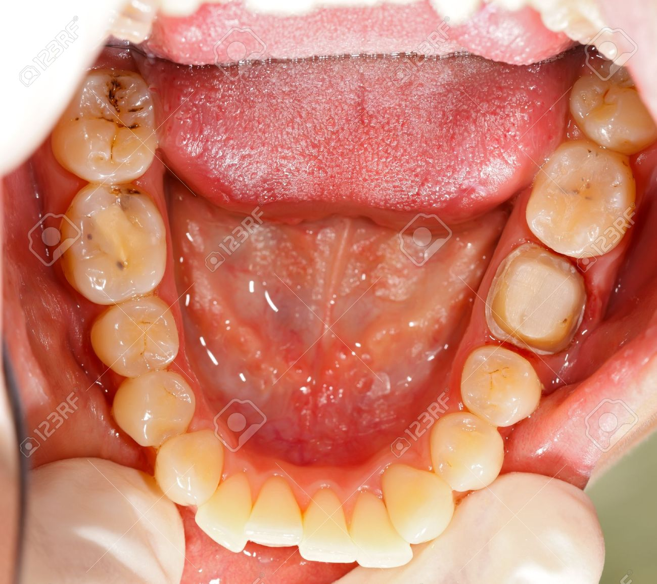 human molar tooth treated before a crown stock photo picture and