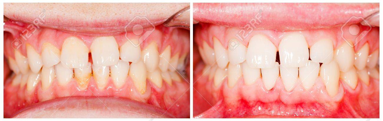 Teeth before and after tooth whitening treatment. Stock Photo - 20797898