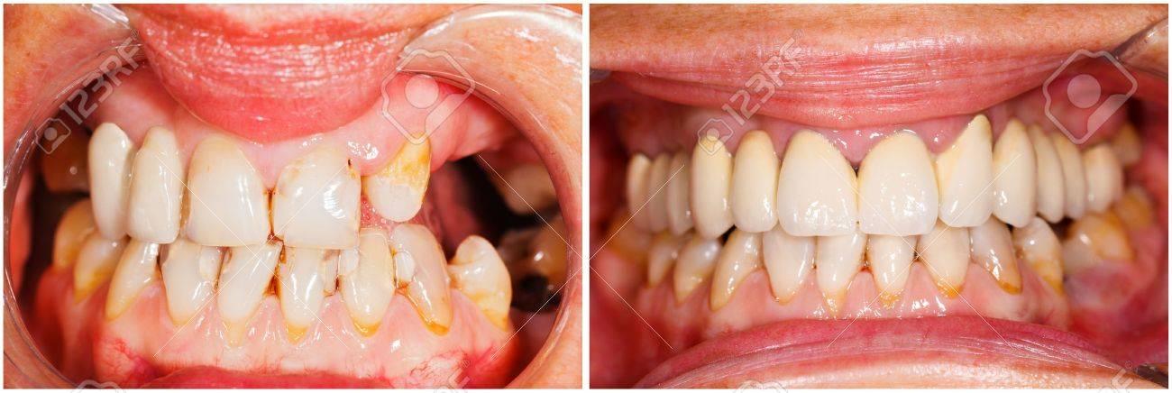 Imagen De Dientes Humanos Antes Y Después Del Tratamiento Dental ...