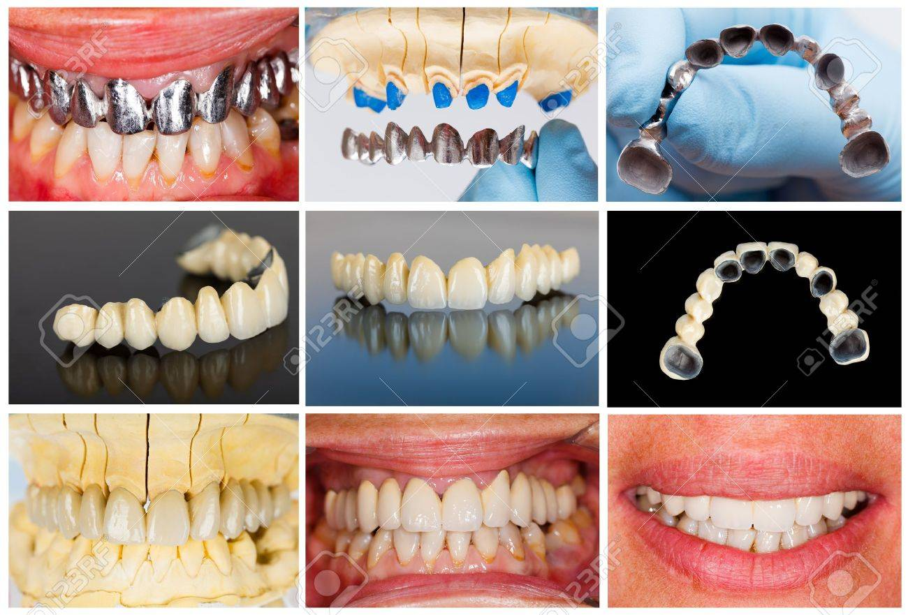 Photographic documentation of the technical steps of dental ceramic bridge. Stock Photo - 21663885