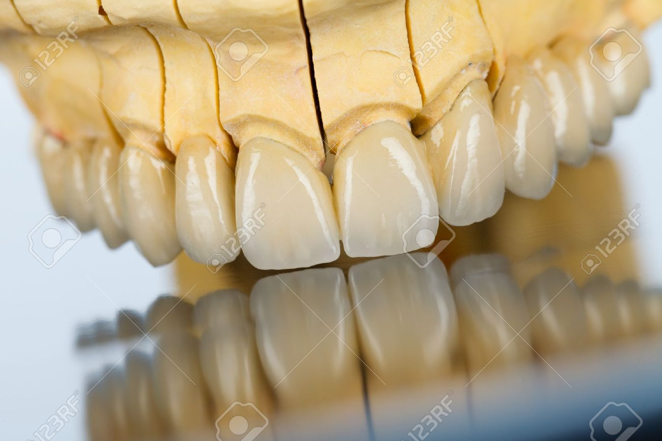 An abstract view of a beautiful porcelain bridge made by dental technician. Stock Photo - 21663909