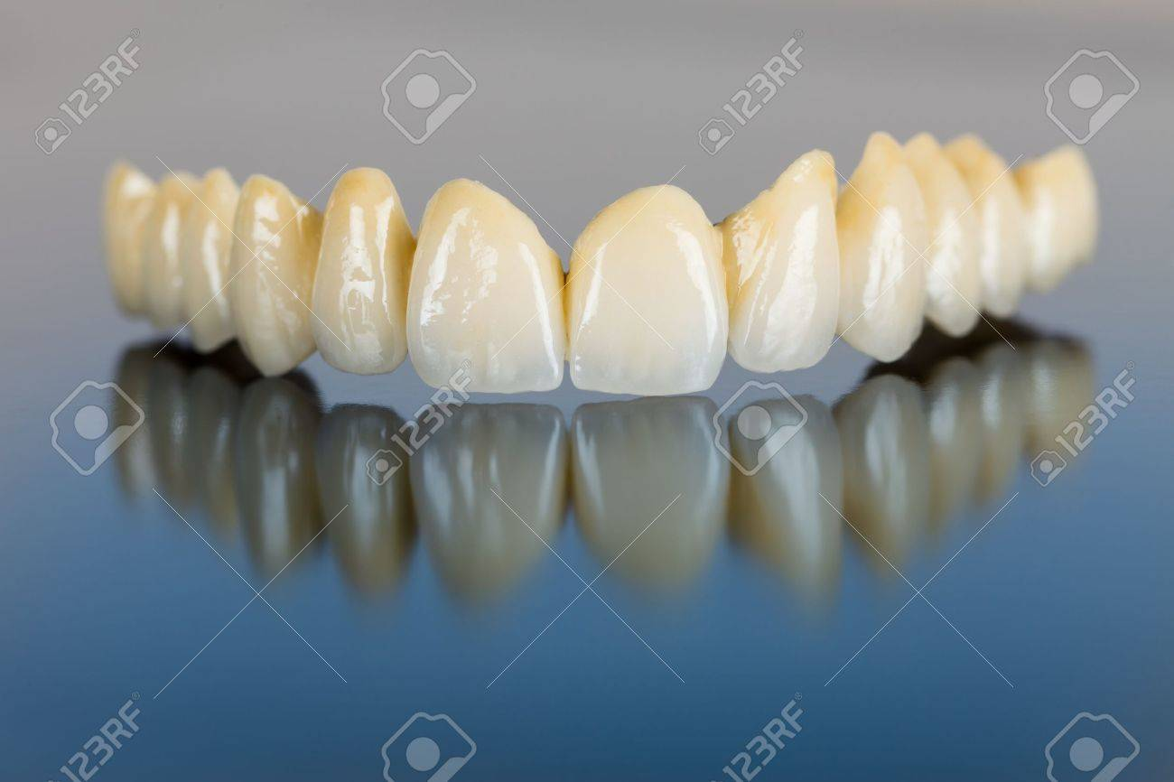 Beautiful ceramic teeth made in the dentist 's office on mirror surface. Stock Photo - 21663912