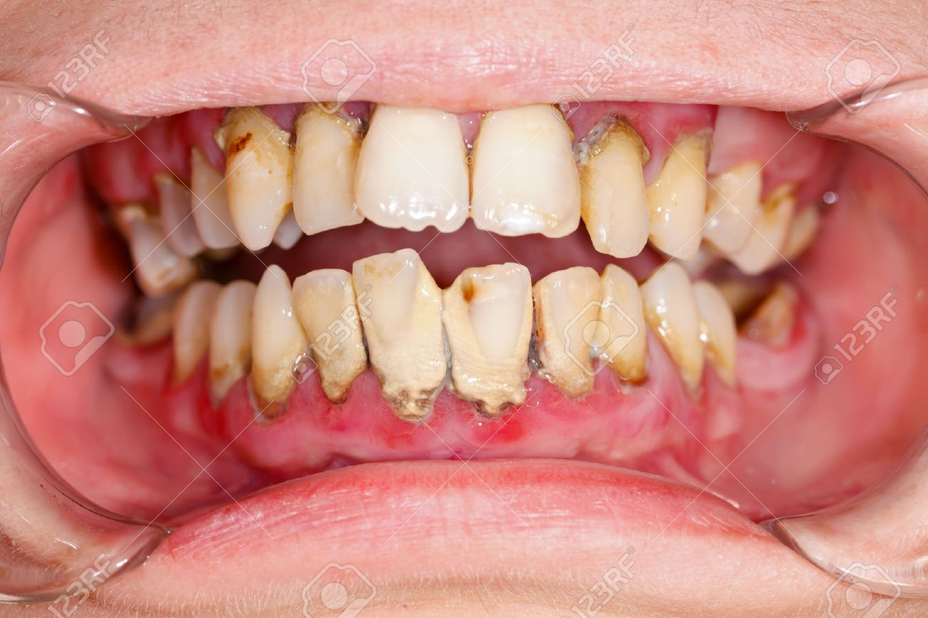 Human mouth before dental treatment plaque on teeth. Stock Photo - 23343069