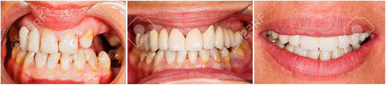 Picture of human teeth before and after dental treatment - beforeafter series. Stock Photo - 28965436