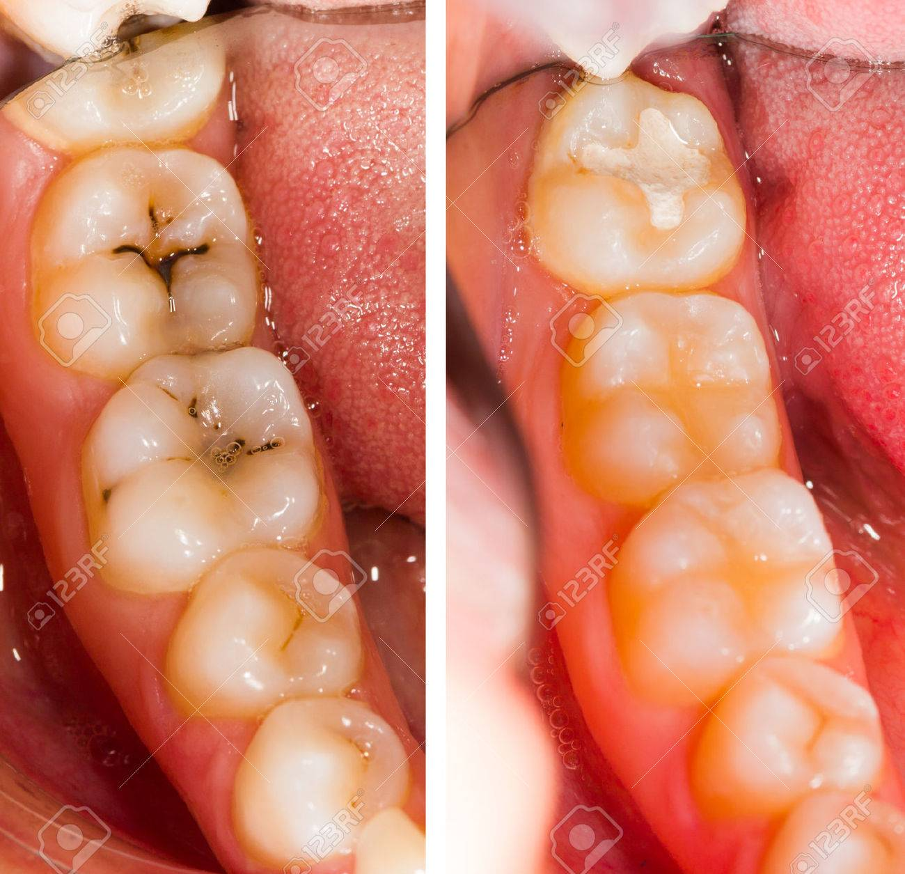 Before and after dental treatment - beforeafter series. Stock Photo - 33275878