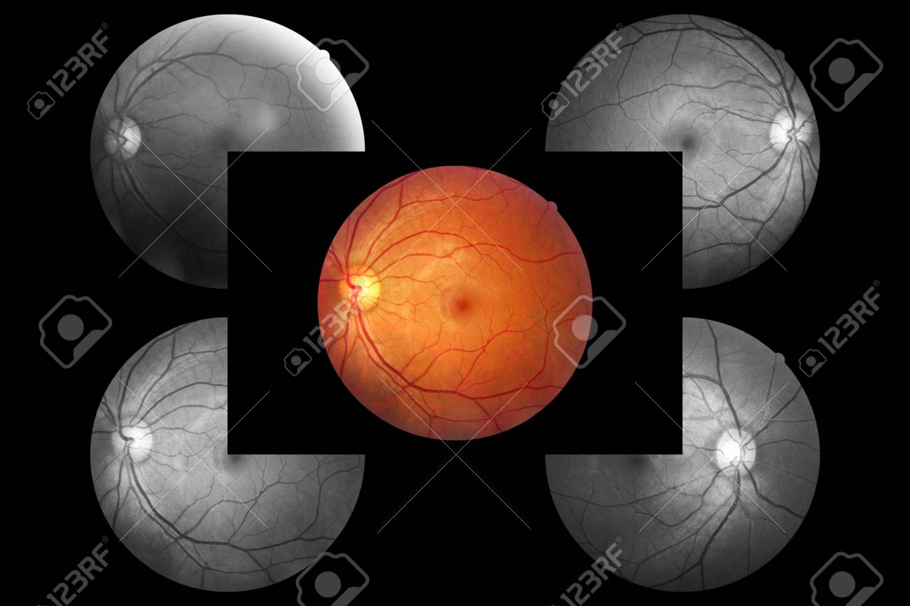 Anatomía Del Ojo Humano, La Retina, La Arteria Y La Vena Del Disco ...