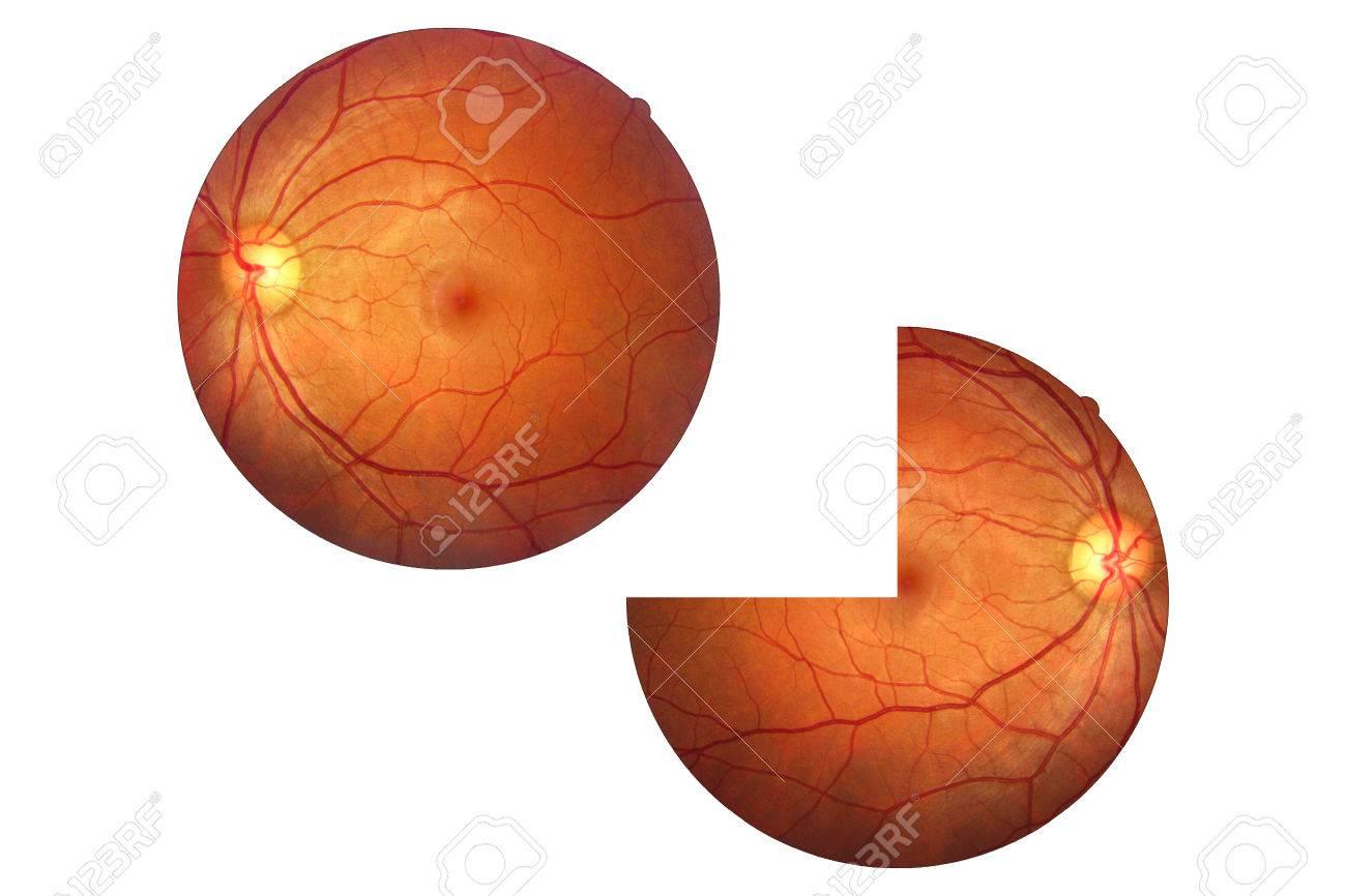 Human Eye Anatomy, Retina, Optic Disc Artery And Vein Etc. Stock ...