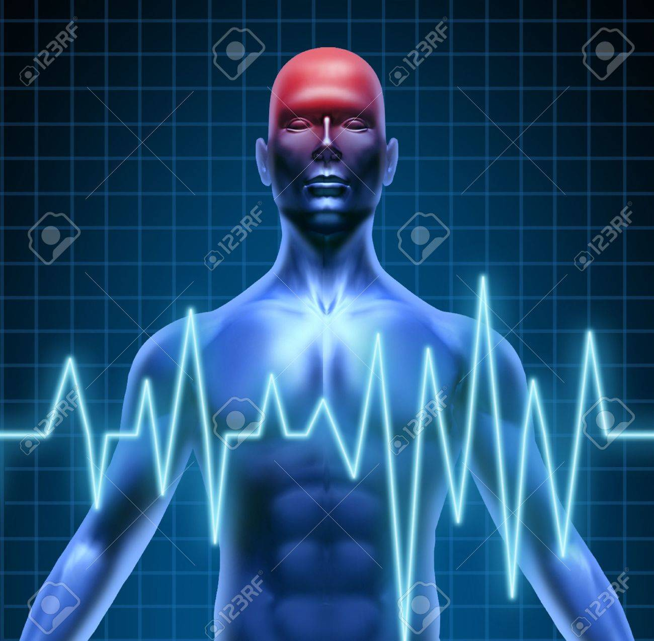 Human body with a head ache of the brain with a migrain and stroke accident caused by poor circulation representing neurology with heart blood health problems. Stock Photo - 10455173