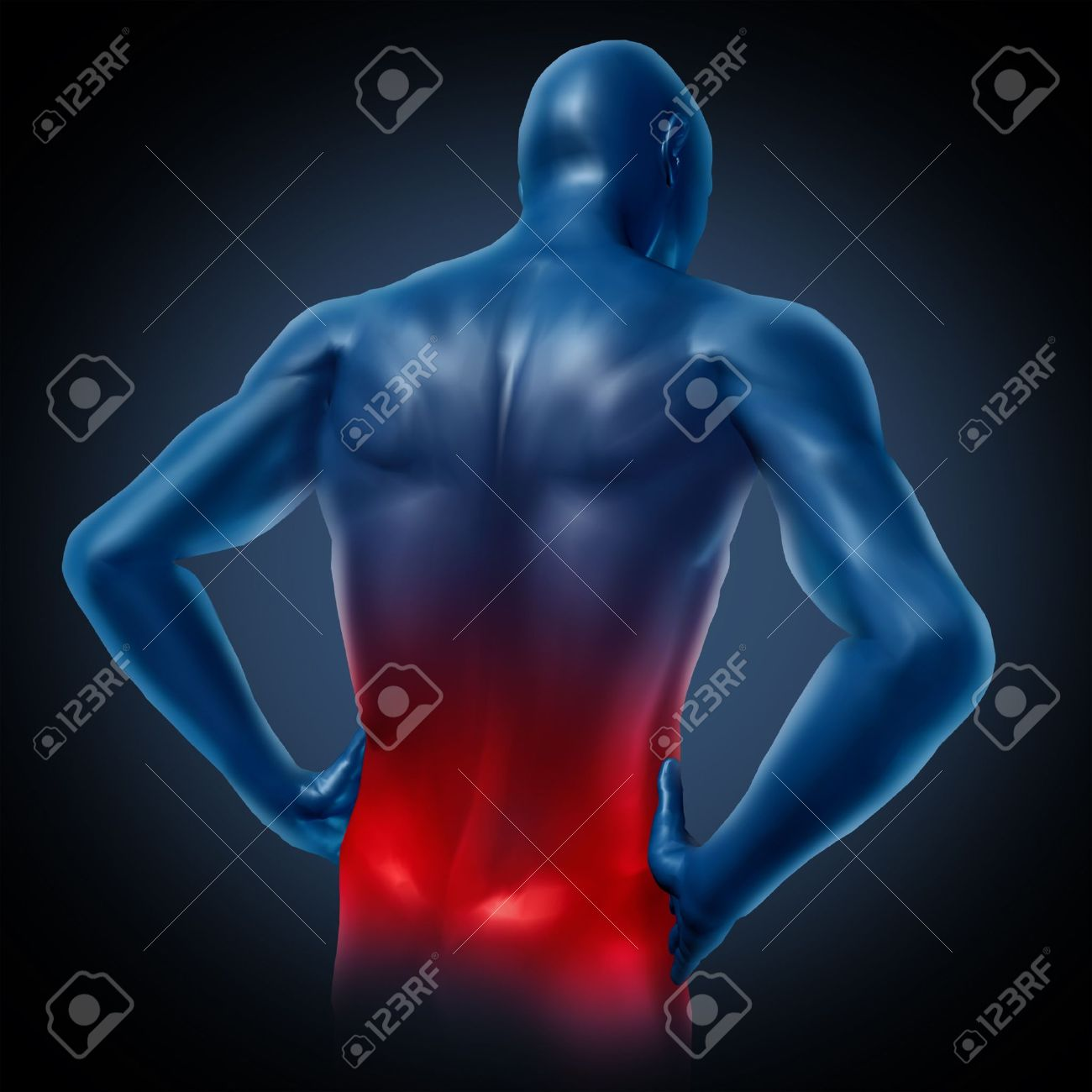 Lower back pain represented by a human body with dorsalgia disease highlighted in red showing chronic spinal medical symptoms that relate to weakness numbness and tingling. Stock Photo - 10455212