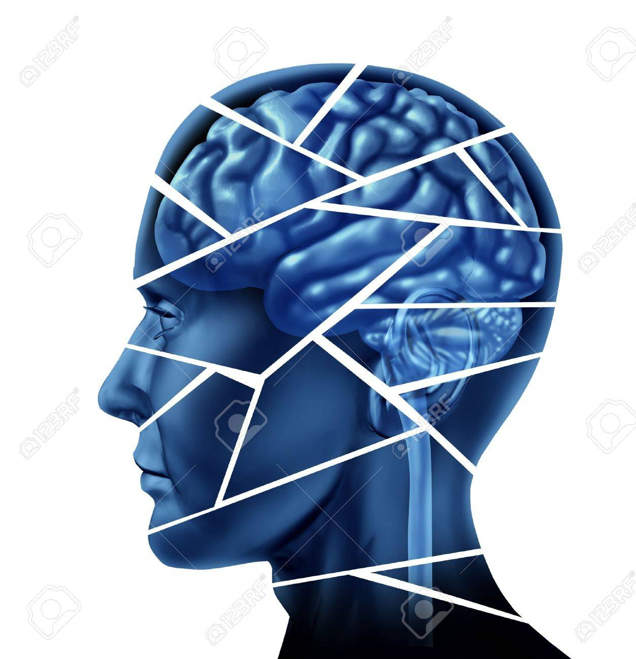 Brain injury and neurological disorder represented by a human head and mind broken in peices to symbolize a severe medical mental trauma and cognitive illness on white background. Stock Photo - 10792814