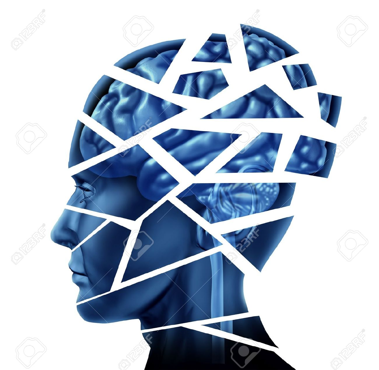 Brain injury and neurological disorder represented by a human head and mind broken in pieces to symbolize a severe medical mental trauma and cognitive illness on white background. Stock Photo - 10843743