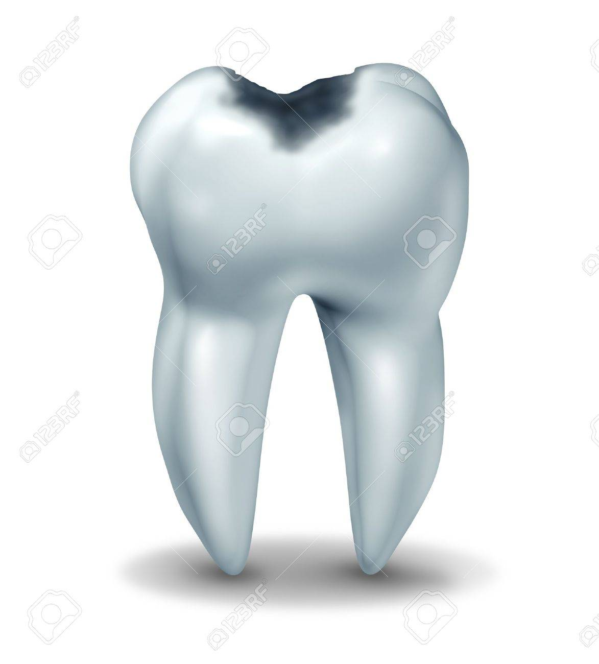 Tooth Cavity Symbol Showing The Medical Anatomy Of Teeth With ...