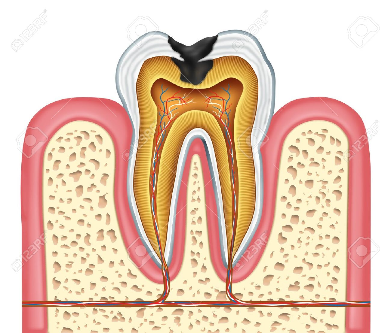 Tooth Inneren Anatomie-Diagramm Als Zahnarzt Chirurg Zähne Symbol ...