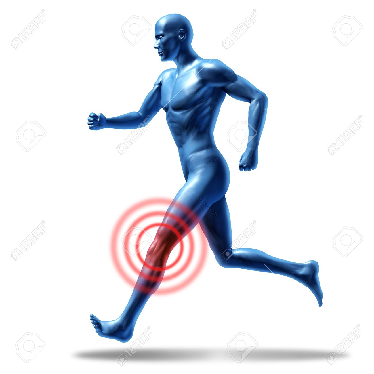 Running man with knee pain and injury representing a medical symbol of health Stock Photo - 11530353