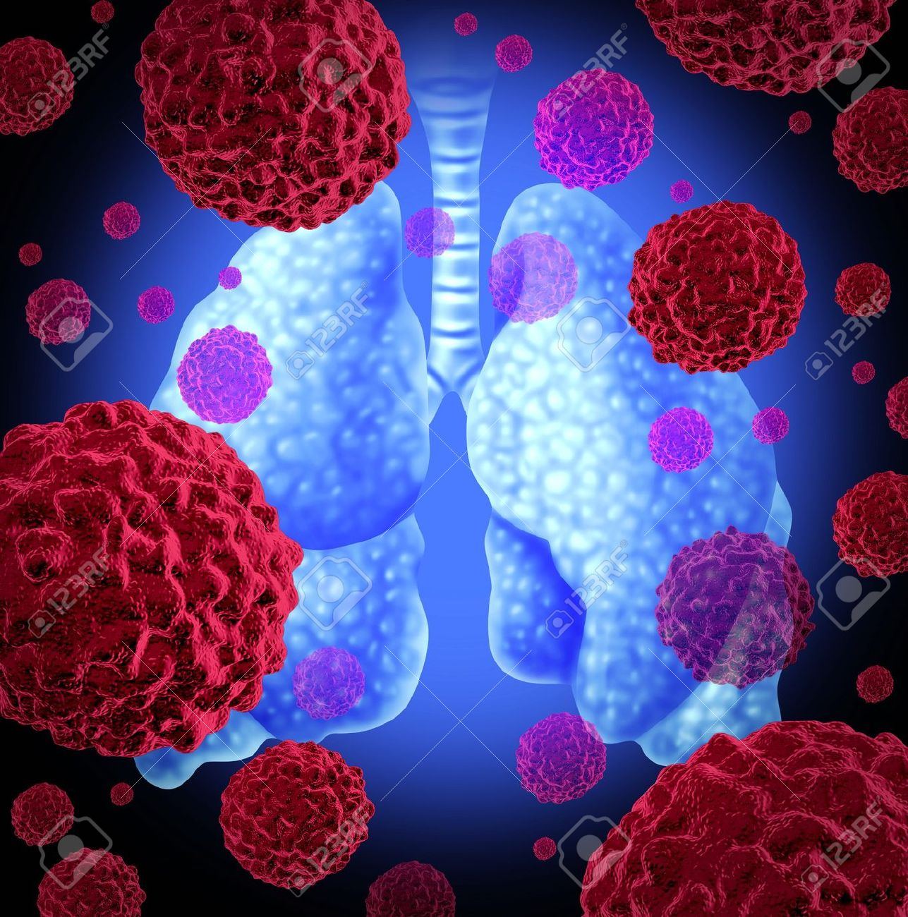 Human lung cancer organ as a medical symbol of a malignant tumor red cancer cell disease as a cancerous growth spreading through the respiratory system caused by smoking and other environmental toxic reasons. Stock Photo - 12024528