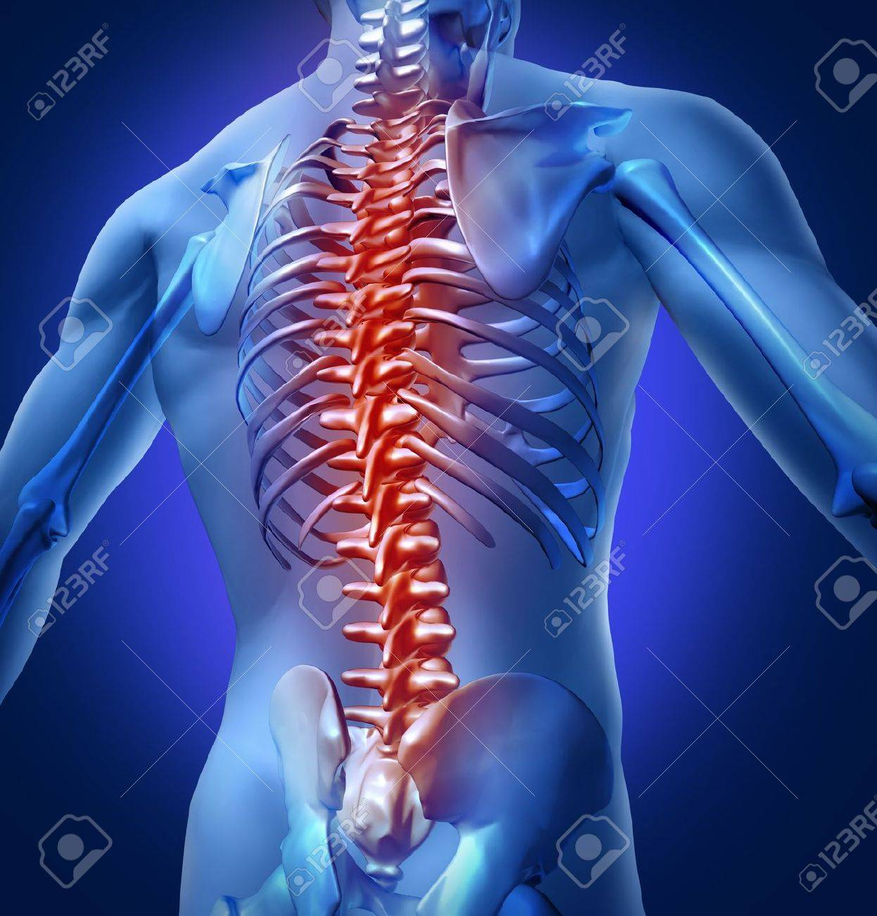 Human Backache And Back Pain With An Upper Torso Body Skeleton ...