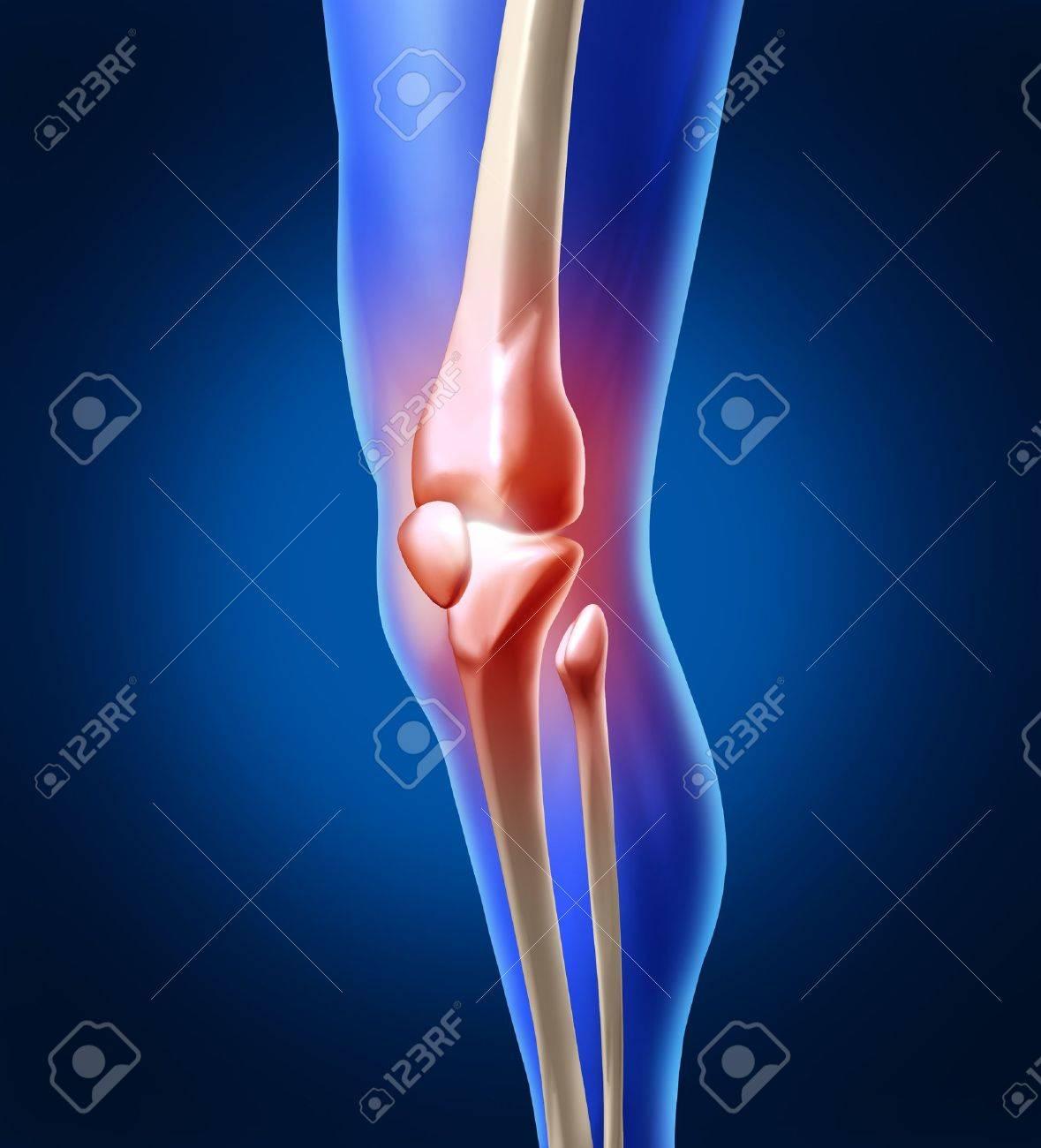 Menschliche Knieschmerzen Mit Der Anatomie Des Skeletts Und Bein ...