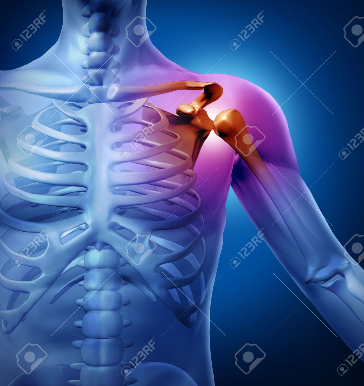 Human Shoulder Pain With An Anatomy Injury Caused By Sports Accident ...