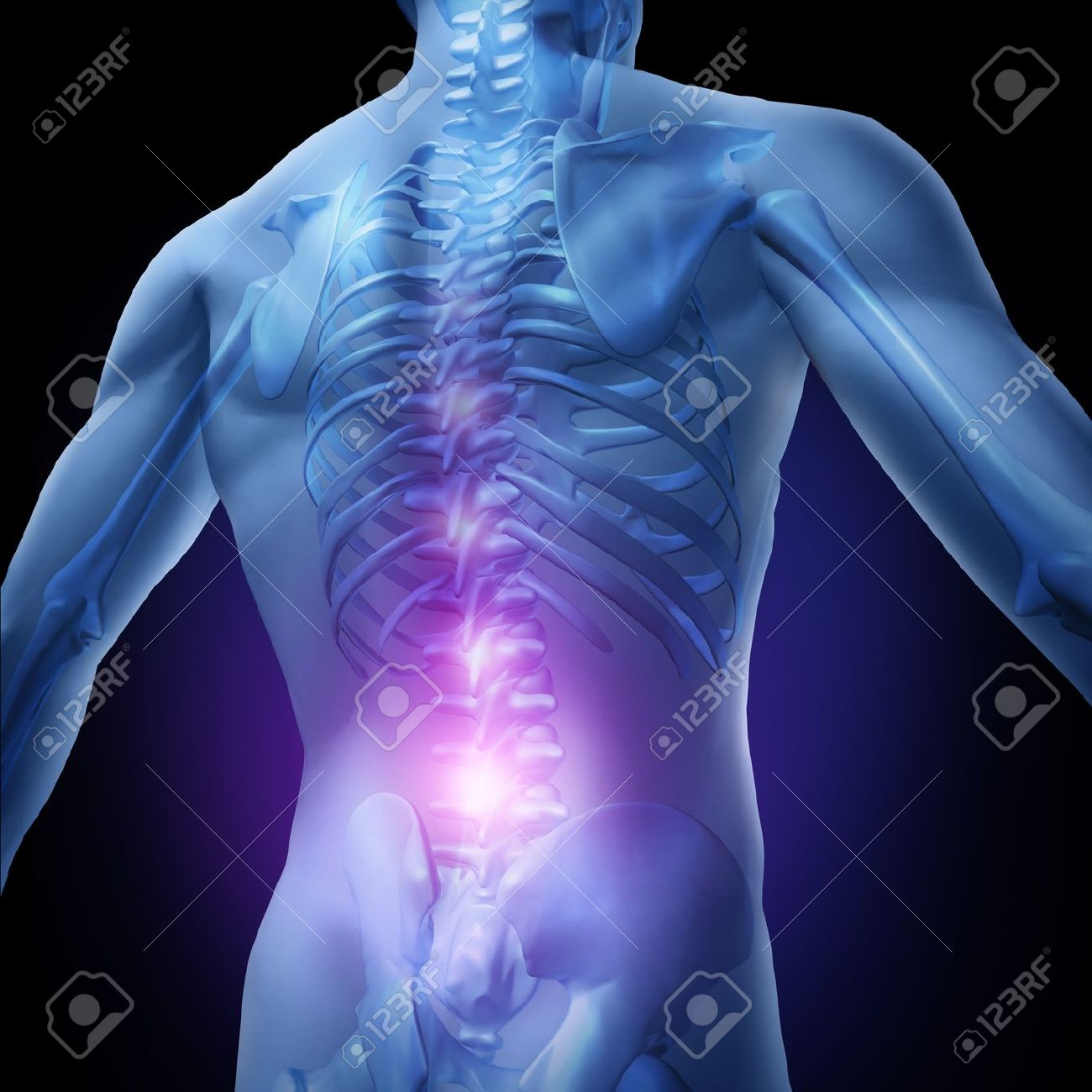 Lower back pain and human backache with an upper torso body skeleton showing the spine and vertebral column in glowing highlight as a medical health care concept for spinal surgery and therapy. Stock Photo - 12353898