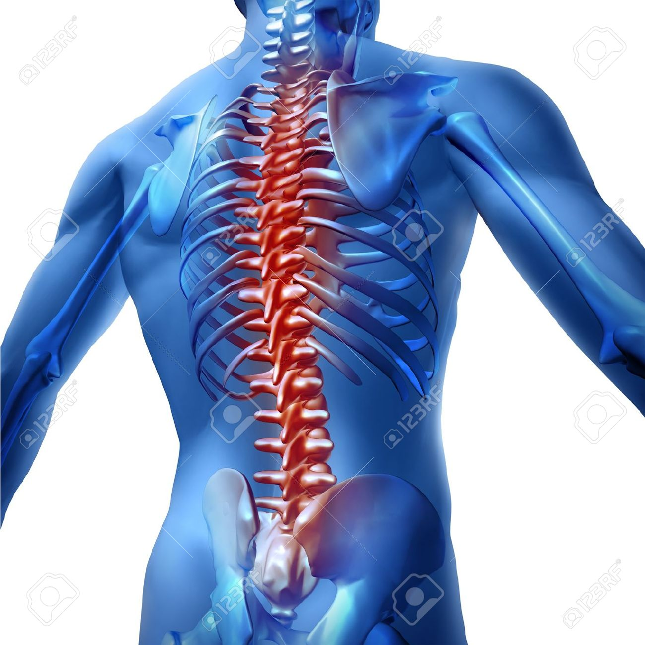 Human Body Backache And Back Pain With An Upper Torso Body Skeleton ...