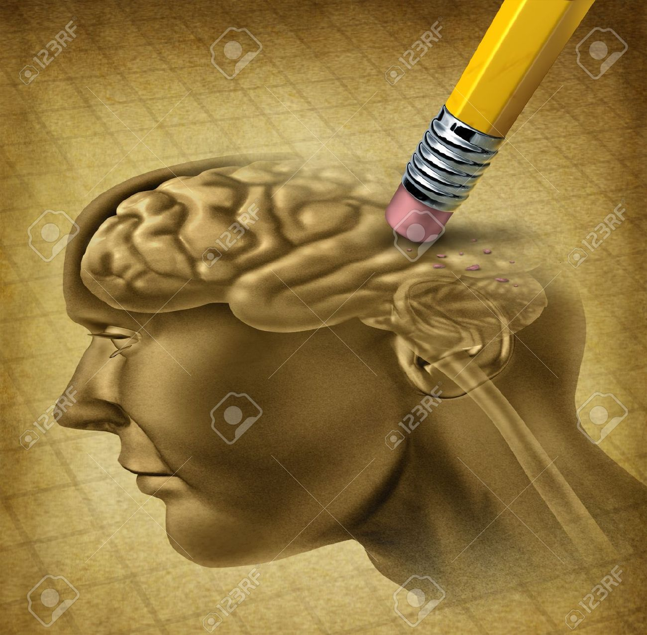 Dementia disease and a loss of brain function and losing memories as alzheimers as a medical health care symbol of neurology and mental problems with a pencil eraser removing the head anatomy on a grunge old parchment paper - 13325473
