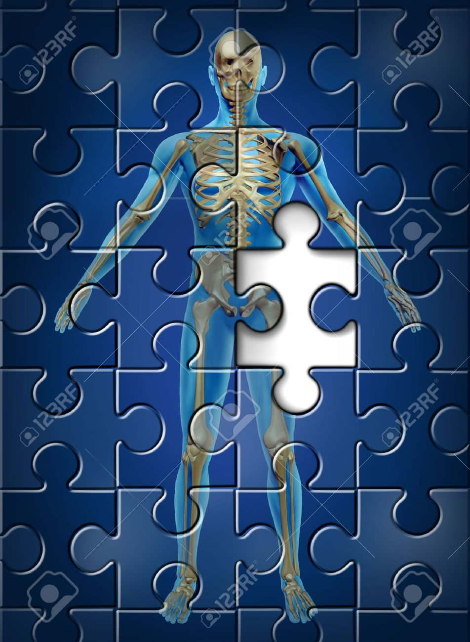 Human skeleton disease and osteoporosis of the hip bone concept with a puzzle texture and a missing piece as a medical and health care symbol of orthopedic and aging deterioration illness Stock Photo - 14118877