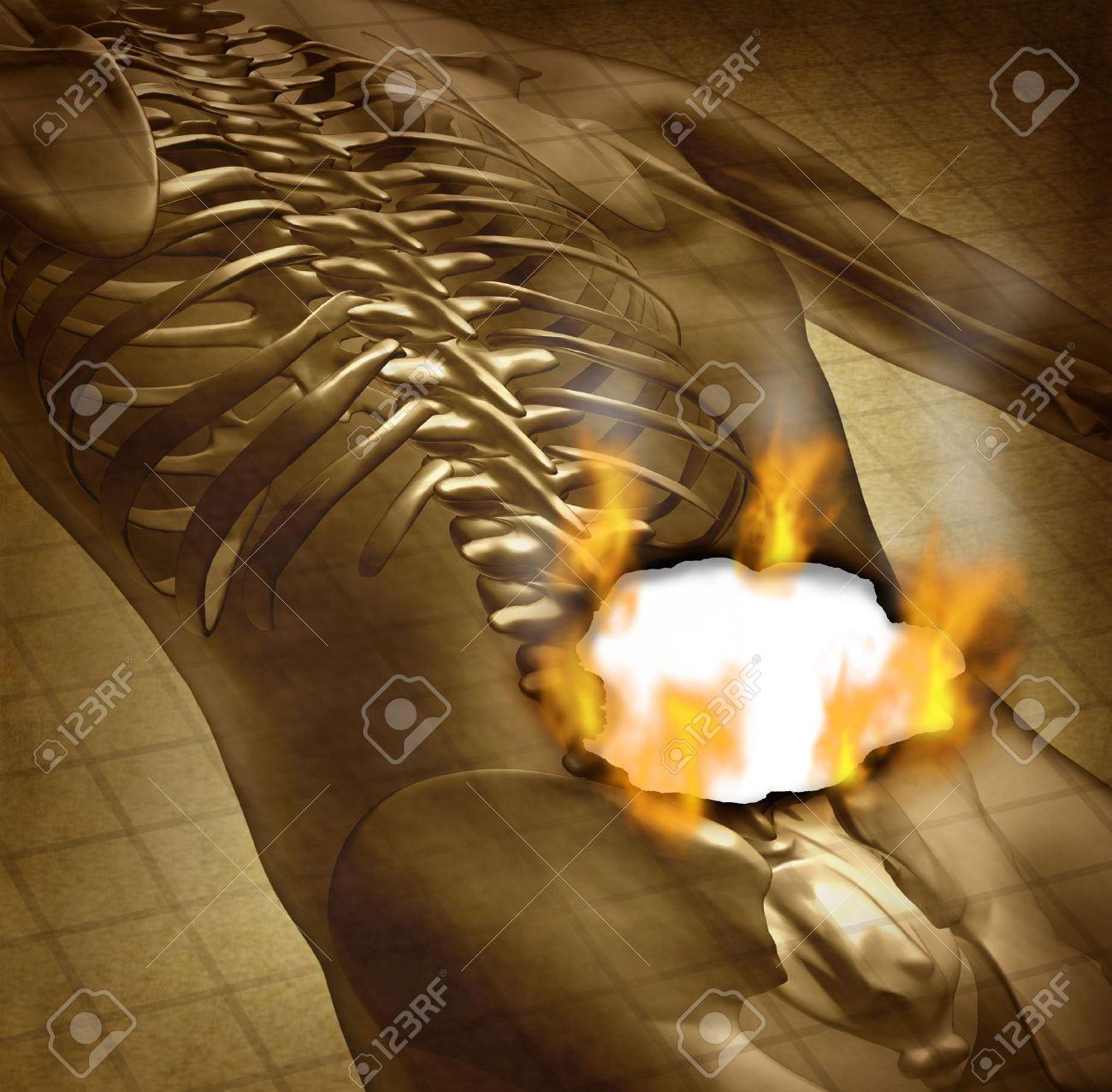 Menschliche Brennenden Rückenschmerzen Und Rückenschmerzen ...