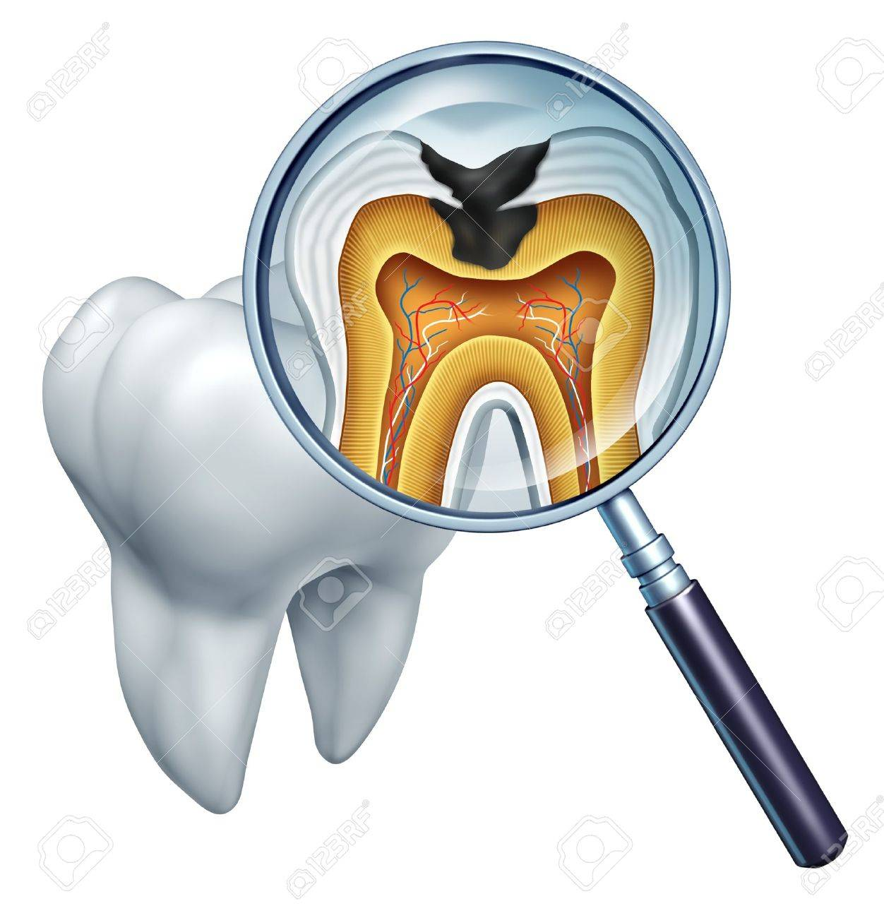 Tooth cavity close up and cavities symbol showing a magnifying glass with a cross section of a tooth anatomy in decay due to bacteria and acids in oral health care showing rotting and disease due to lack of brushing - 14730974