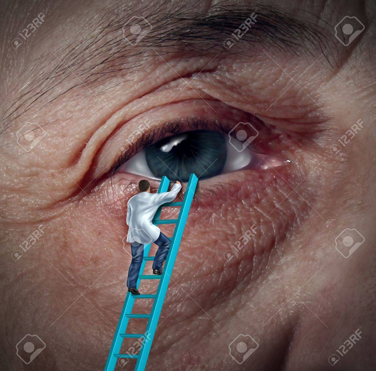 Medical Eye Care concept with an ophthalmologist or optometrist climbing a ladder to givie a diagnosis on an aging elderly patient that may have vision problems due to cataracts or other ocular diseases Stock Photo - 20688448
