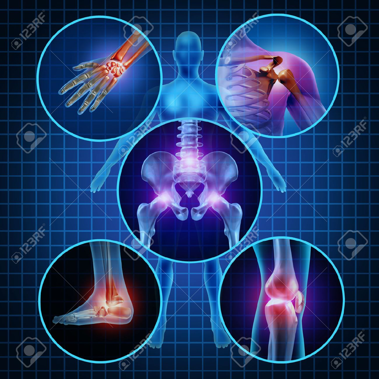 Painful joints human anatomy concept with the body as a group of circular panels of sore areas as a pain and injury or arthritis illness symbol for health care and medical symptoms due to aging or sports and work injury - 28028298